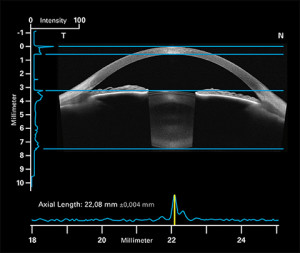 Biometry for IOL calculation