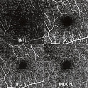 The SPECTRALIS® OCT Angiography Module non-invasively produces detailed, three-dimensional representations of the perfused retinal and choroidal vasculatures.