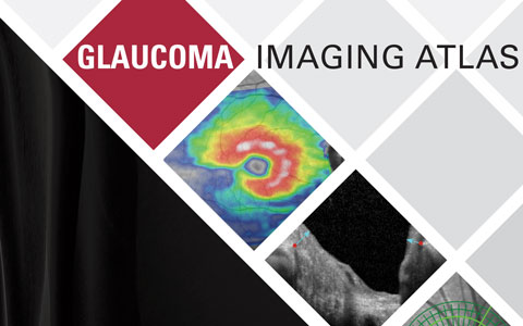 London Launch for World Class Glaucoma Atlas